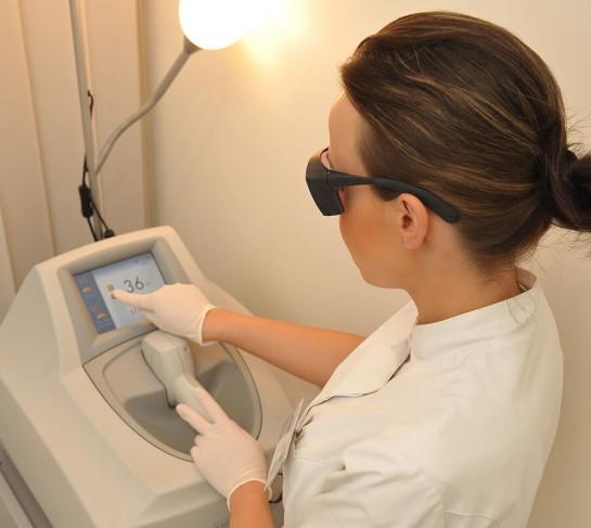 depilacja laserowa - laser