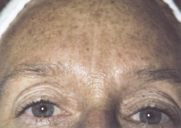 fotoodmładzanie twarzy 4