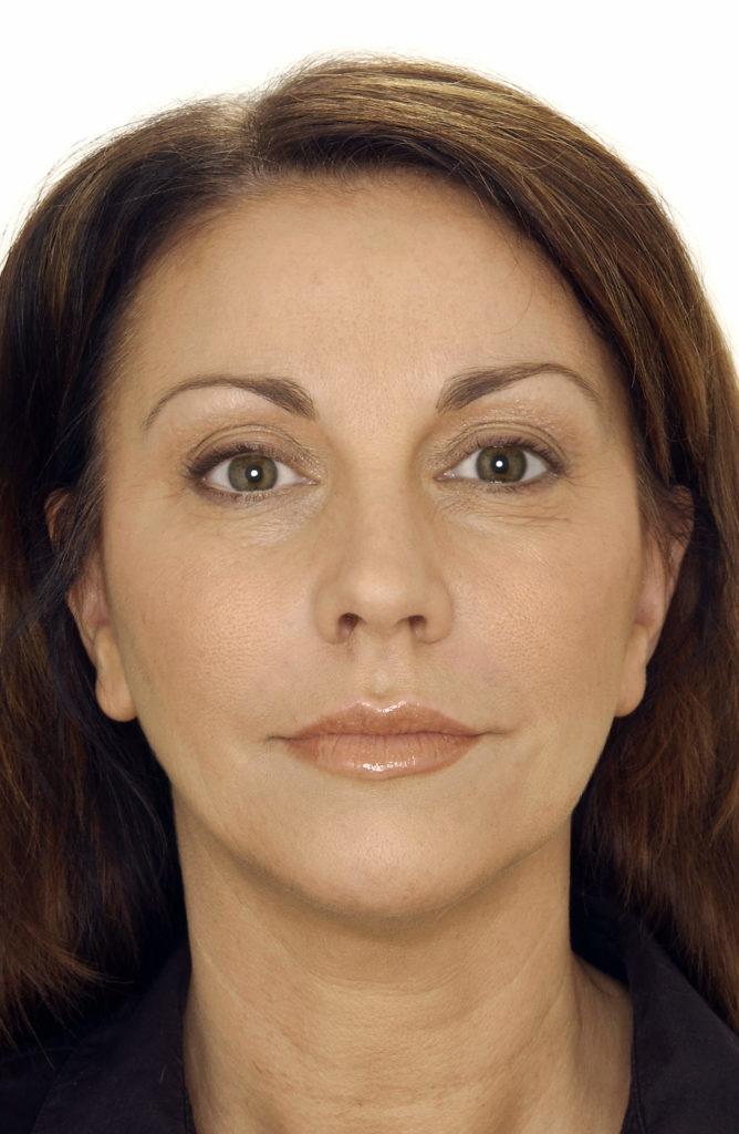 likwidacja zmarszczek z twarzy - przed zabiegiem
