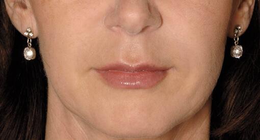 likwidacja zmarszczek z twarzy - po zabiegu