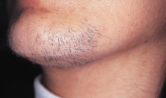 laserowe usuwanie owłosienia - przed zabiegiem