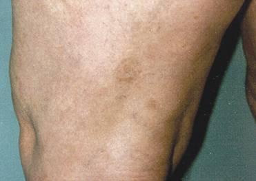 laserowe usuwanie przebarwień - przed zabiegiem