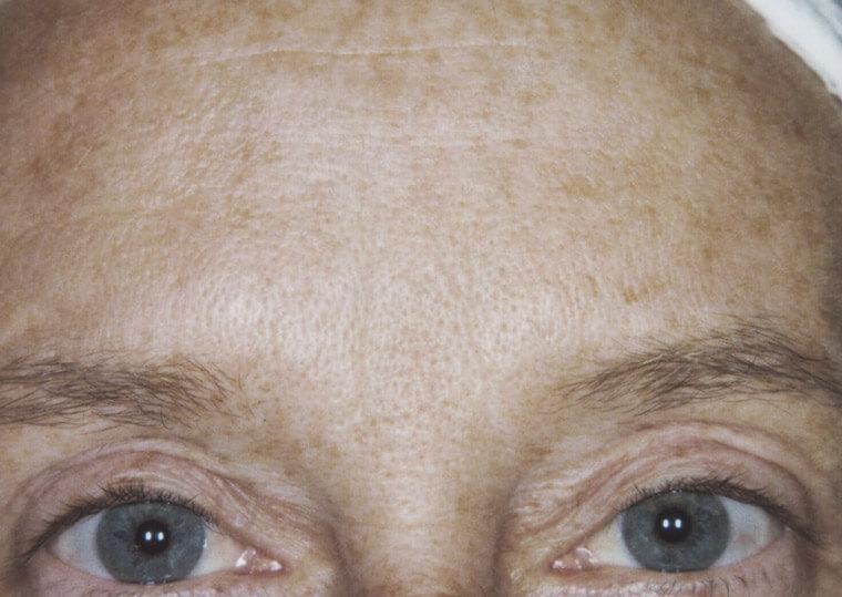 fotoodmładzanie twarzy 3