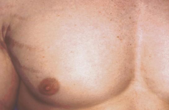 usuwanie owłosienia z klatki piersiowej - po zabiegu