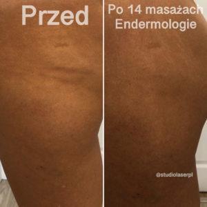 endermologia - efekty po 14 masażach