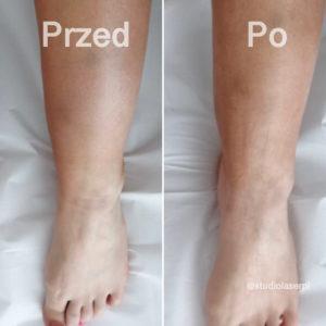 efekty - presoterapia
