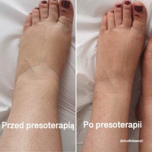 efekty presoterapii