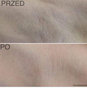 depilacja laserowa - efekty zabiegu