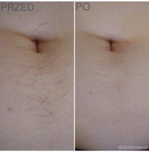 depilacja laserowa - efekty po zabiegu