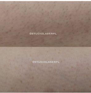 efekt po depilacji laserowej
