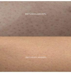 skóra