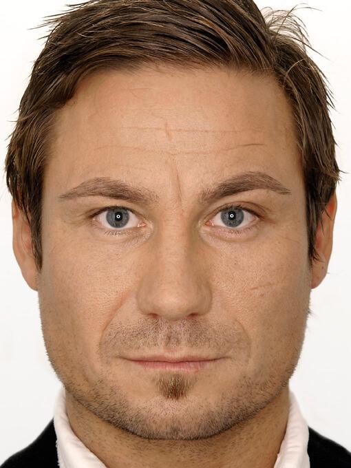 likwidacja zmarszczek z twarzy - mężczyzna