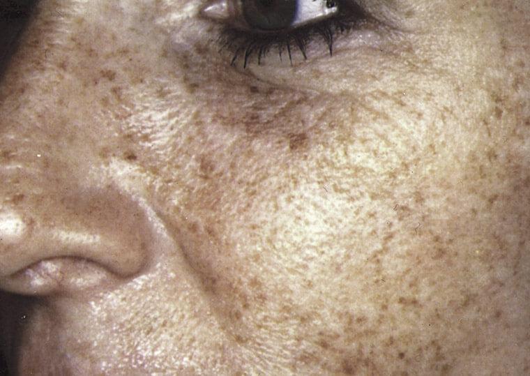 fotoodmładzanie twarzy