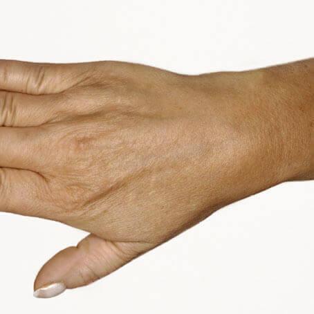 likwidacja zmarszczek z dłoni - po zabiegu