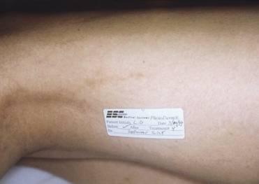 laserowe zamykanie naczynek - po zabiegu