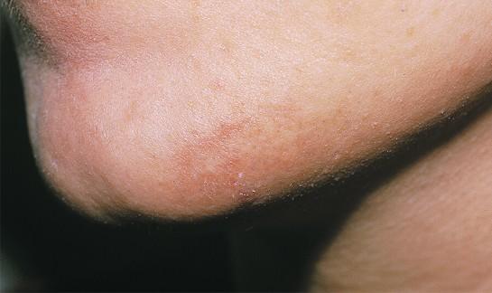 laserowe usuwanie owłosienia - po zabiegu
